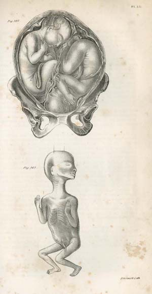 "Pl. LII. ""Twins in utero: the head of one presenting, the breech of the other; Secondary foetus three months of age."" Plate printed by Thomas Sinclair in Francis H. Ramsbotham, The Principles and Practice of Obstetric Medicine and Surgery, in Reference to the Process of Parturition. Illustrated by One Hundred and Forty-Eight Plates (Philadelphia: Lea & Blanchard, 1849)."